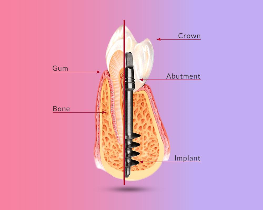 Uvod u bazalnu implantologiju, Uvod u bazalnu implantologiju zubnih implanta
