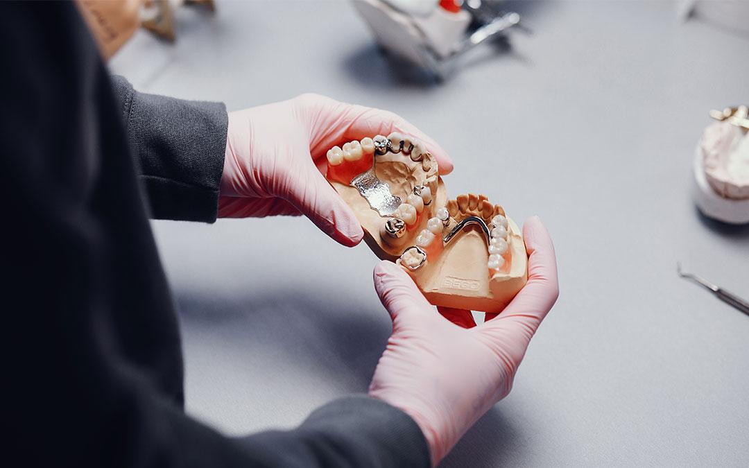 , Priprema za implantaciju zuba