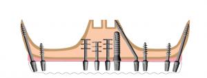, Razmatranje u vezi potpornog poligona, elastičnosti zubnog implanta i kosti