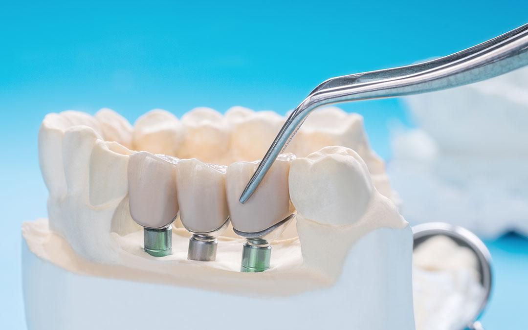, Najčešća pitanja vezano za ugradnju zubnih implantata